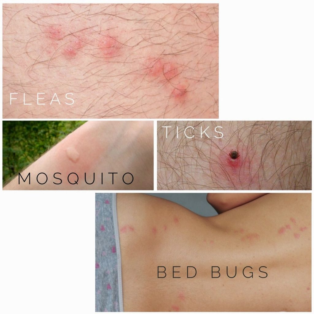 Flea, mosquito, tick and bed bug bites on humans. what bug is biting you.